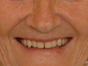 New smile with dental implants!