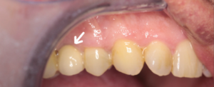 Dental implant to replace missing tooth upper right side